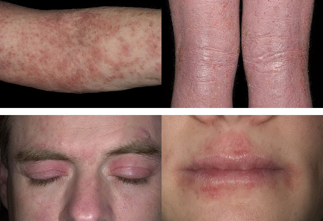 атопический дерматит на руках, ногах, лице и губах