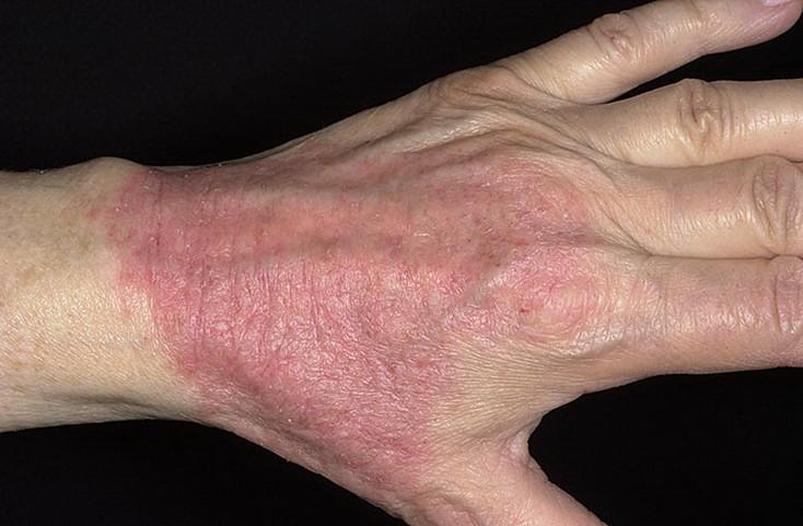 атопический дерматит на коже руки