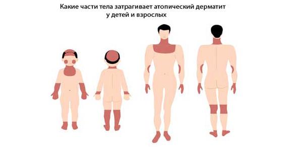 какие части тела затрагивает атопический дерматит?