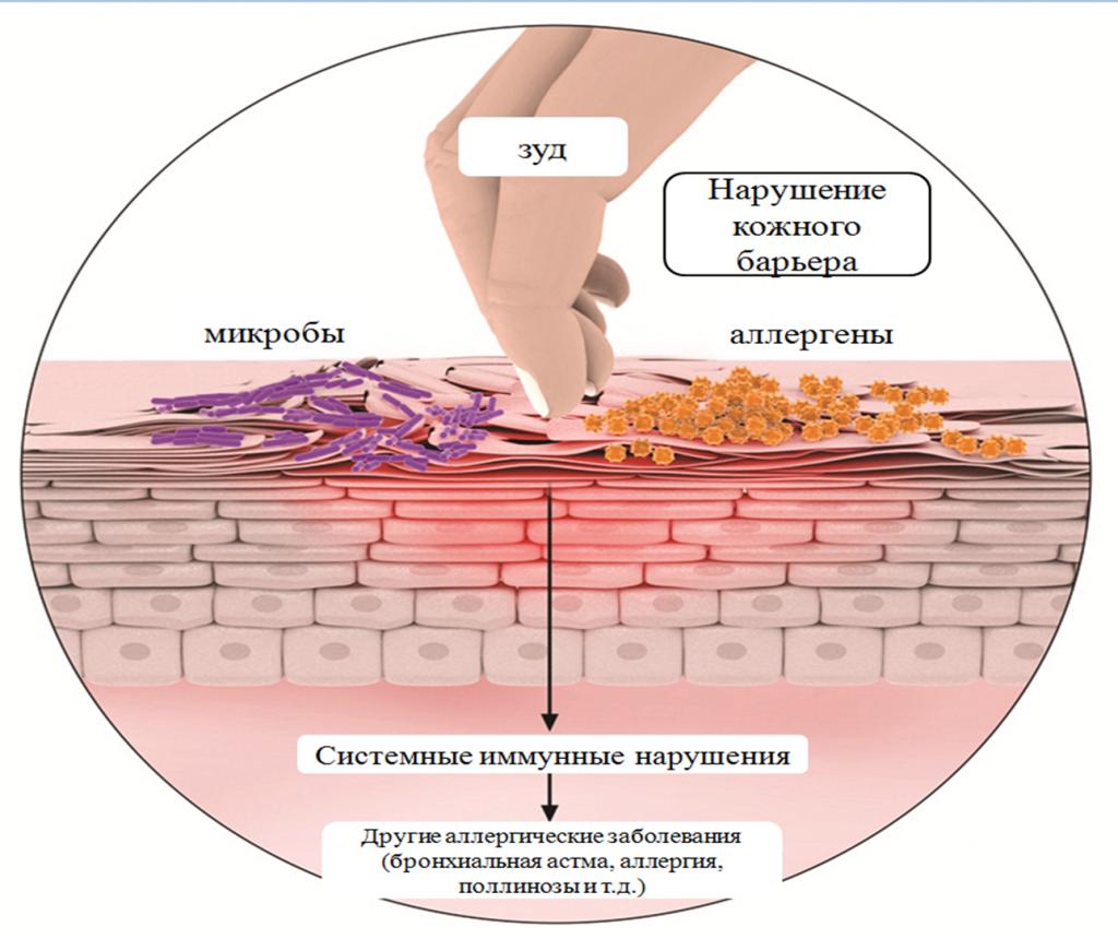симптомы атопического дерматита - схема