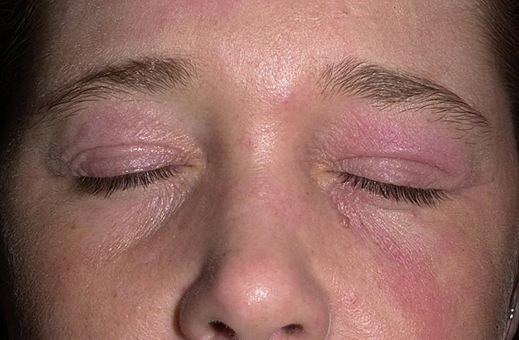 Атопический дерматит причины обострения