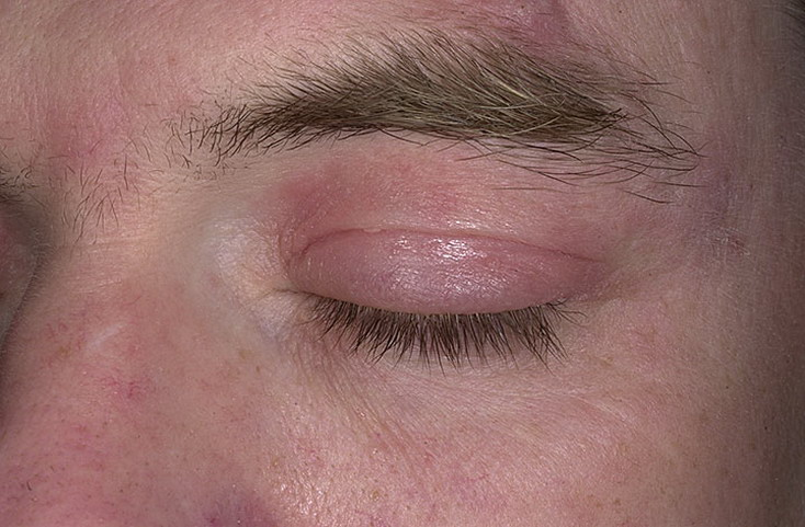 Признаки атопического дерматита у взрослых