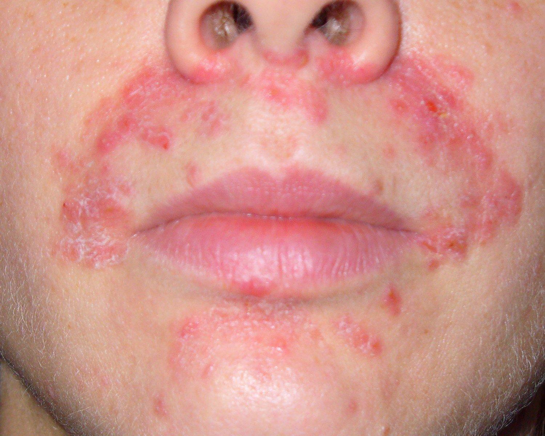 Проявления атопического дерматита у взрослых